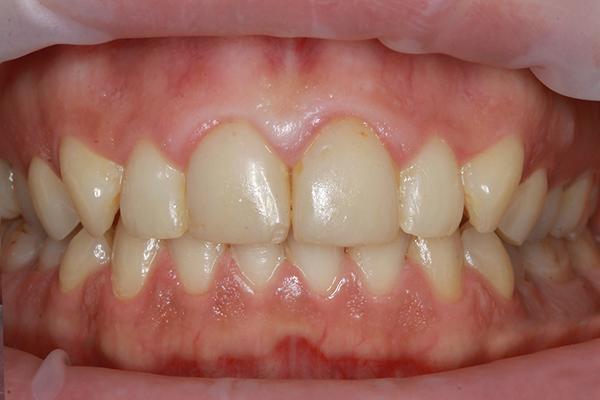 Стоимость 1 зуба винира